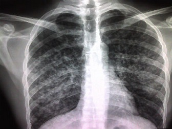 xray of lungs with suspected tuberculosis, aka tb